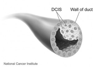 Illustration of DCIS cells